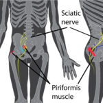 Piriformis muscle and sciatica nerve